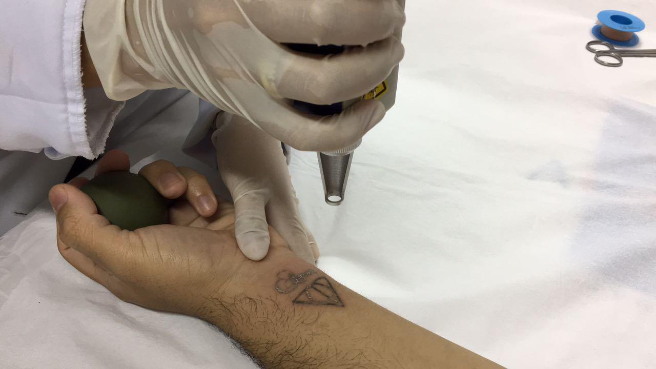 Como se especializar no trabalho de remoção de tatuagens